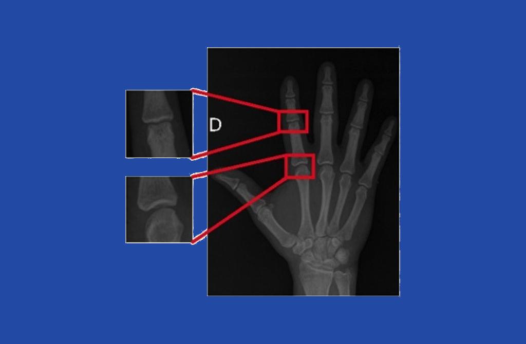 portfolio_finger